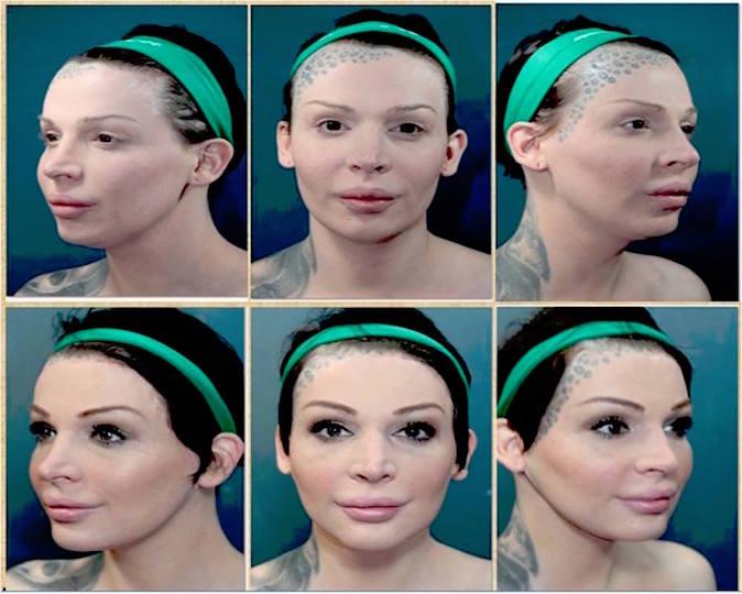videos-facial-feminization-photos-and-testimonials-asian