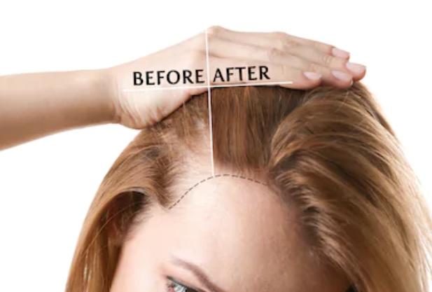 Hairtransplant for trasgender