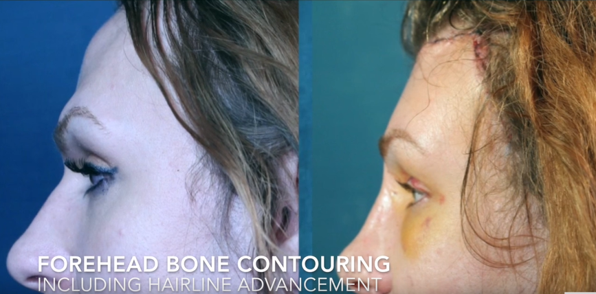 Forehead Bone Contouring including Hairline Advancement .jpg