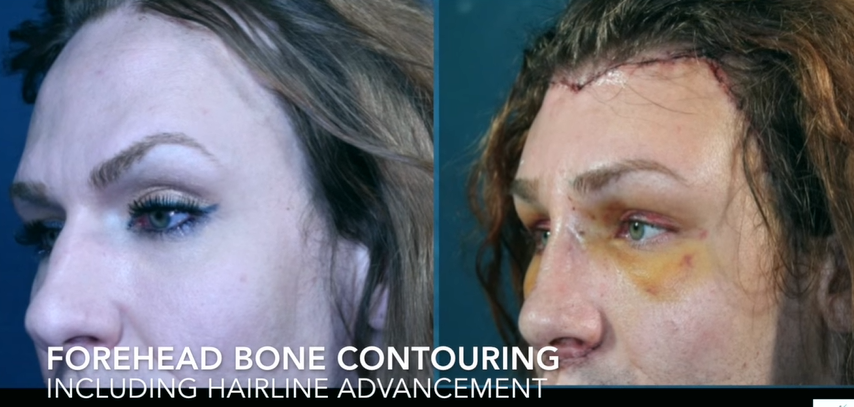 Forehead Bone Contouring including Hairline Advancement 2