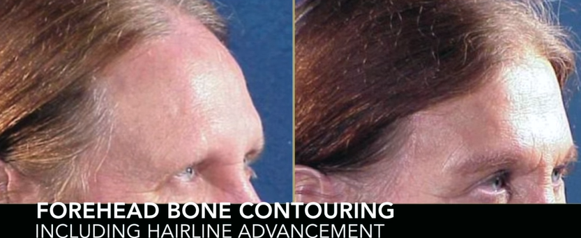 Forehead Bone Contouring with Hairline Advancement 3