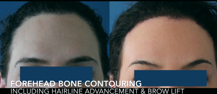 Forehead Bone Contouring with Hairline Advancement and Brow Lift