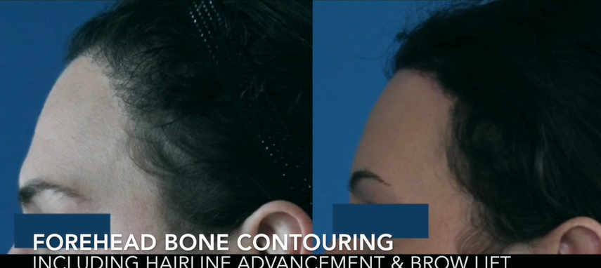 Forehead Bone Contouring with Hairline Advancement and Brow Lift2
