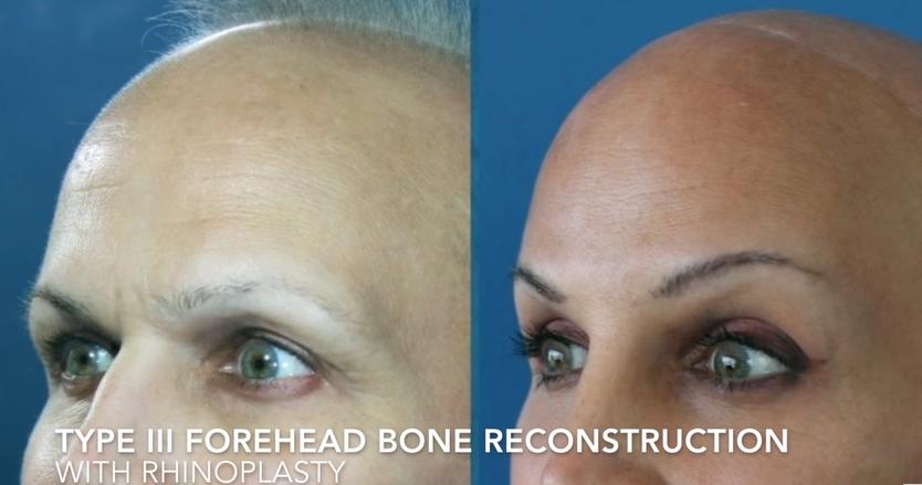 Type III Forehead Bone Reconstruction 2