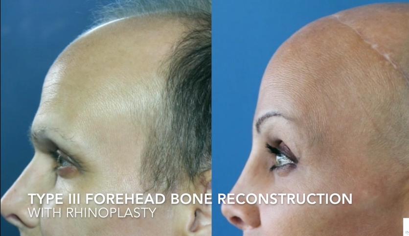 Type III Forehead Bone Reconstruction 3