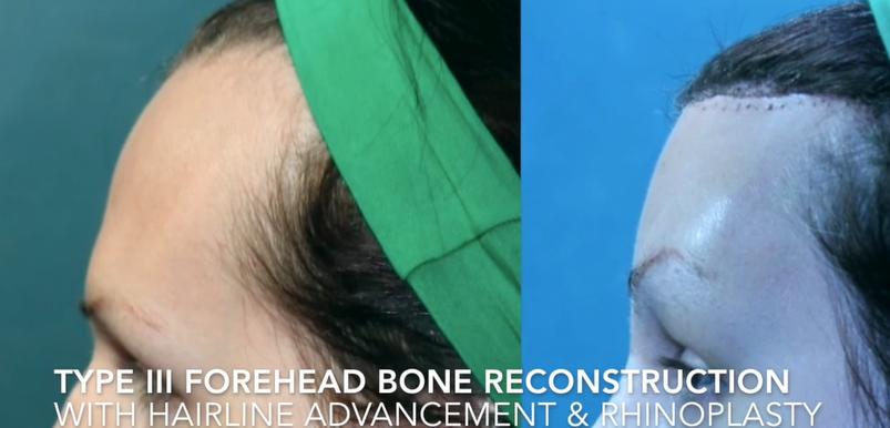Type III Forehead Bone Reconstruction with Hairline advandement & Rhinoplasty0