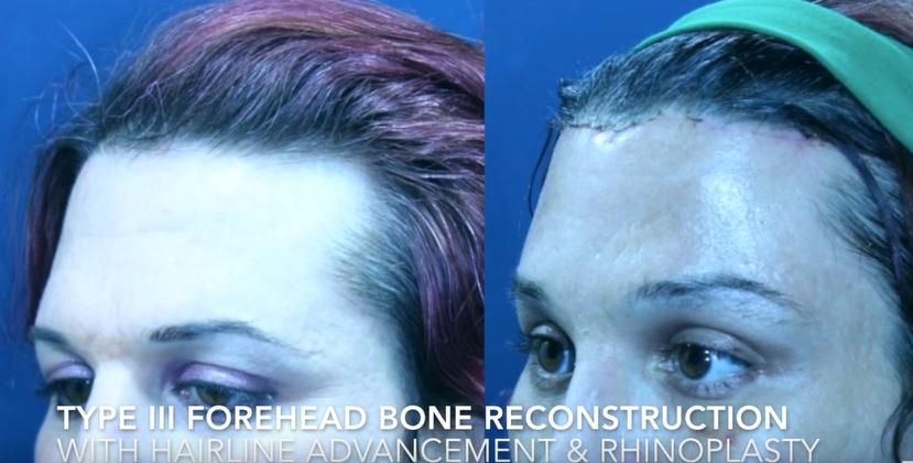 Type III Forehead Bone Reconstruction with Hairline advandement & Rhinoplasty1