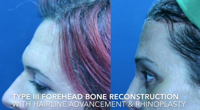 Type III Forehead Bone Reconstruction with Hairline advandement & Rhinoplasty2