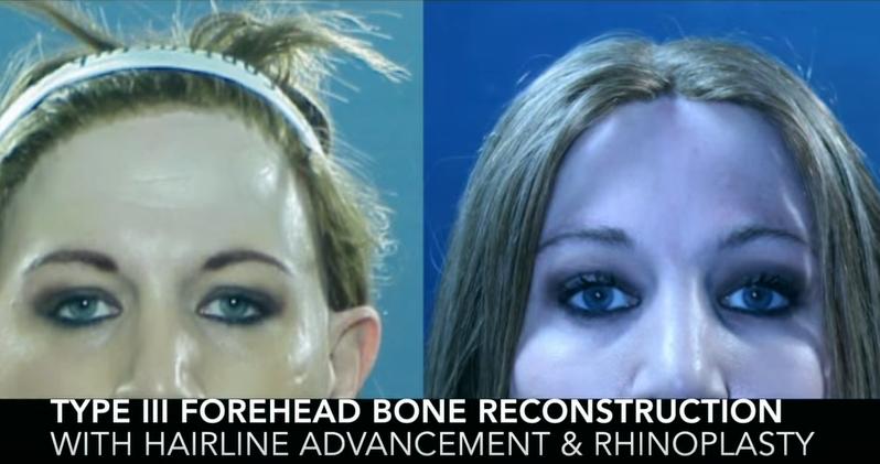 Type III Forehead Bone Reconstruction with Hairline advandement & Rhinoplasty3