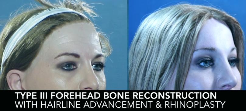 Type III Forehead Bone Reconstruction with Hairline advandement & Rhinoplasty4