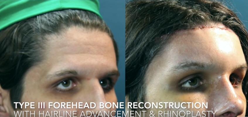 Type III Forehead Bone Reconstruction with Hairline advandement & Rhinoplasty5