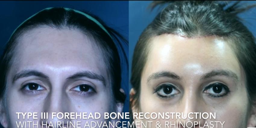 Type III Forehead Bone Reconstruction with Hairline advandement & Rhinoplasty6