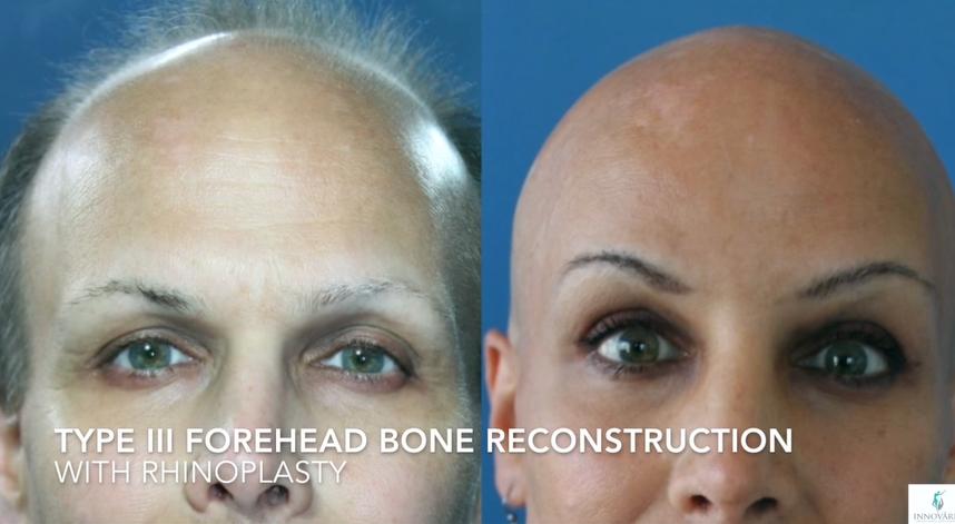Type III Forehead Bone Reconstruction